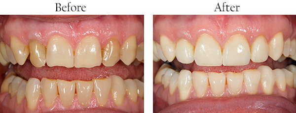 Smile Gallery: Before/After Case 2