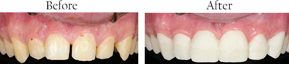 Smile Gallery: Before/After Case 4