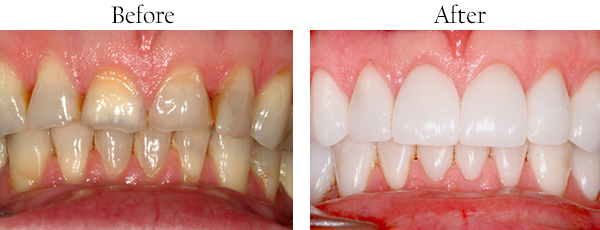 Smile Gallery: Before/After Case 5