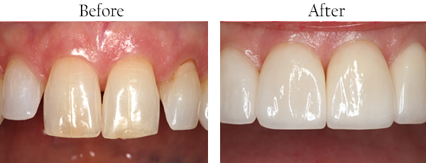 Smile Gallery: Before/After Case 6