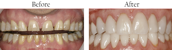 Smile Gallery: Before/After Case 7