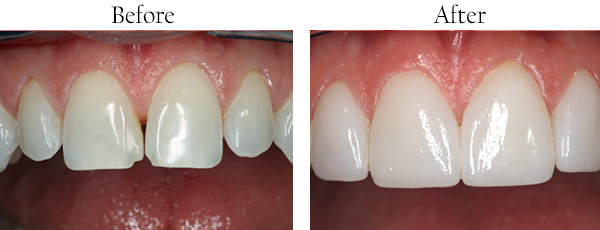 Smile Gallery: Before/After Case 8